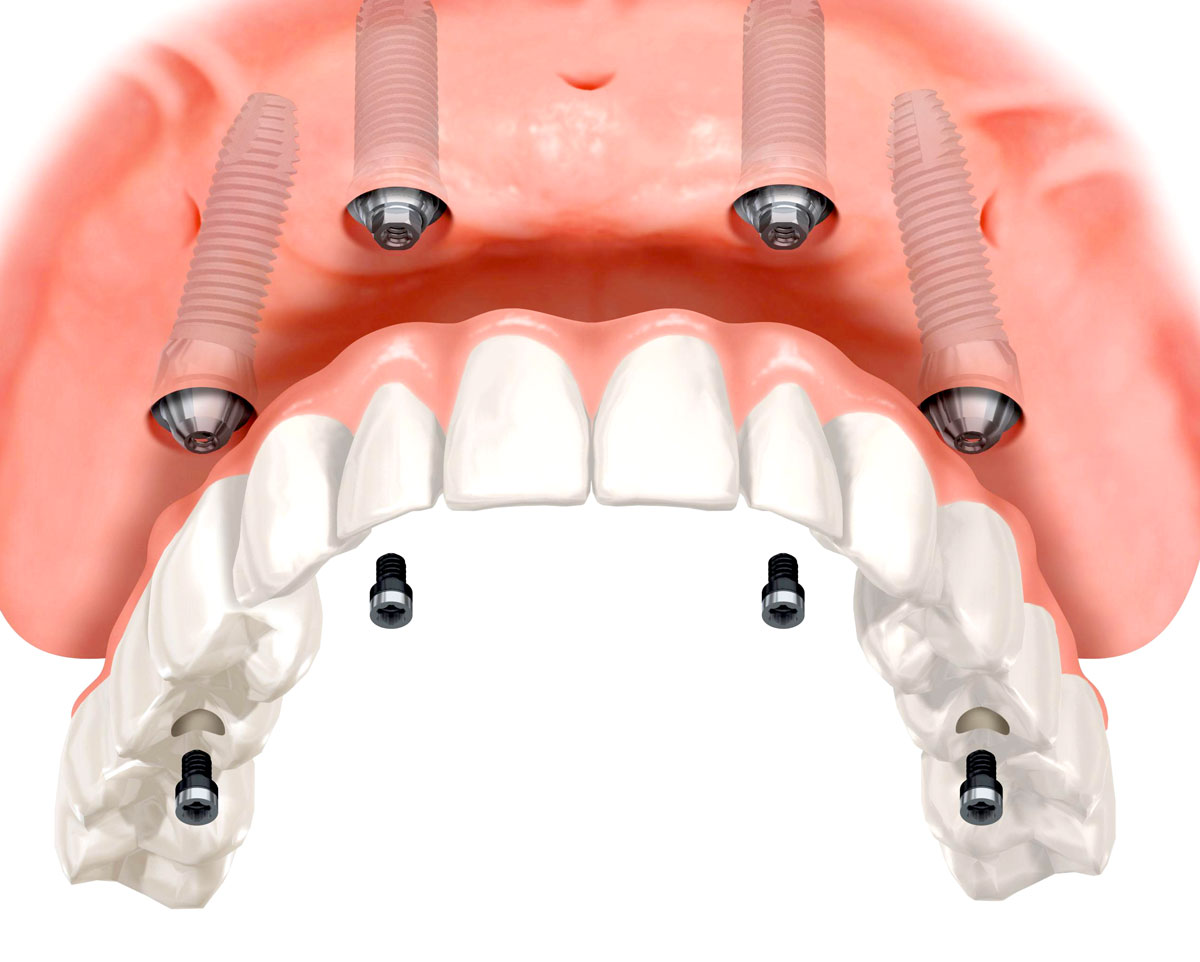 штифты на зубы цена