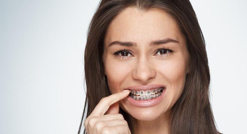 Что делать если болят зубы после установки брекетов