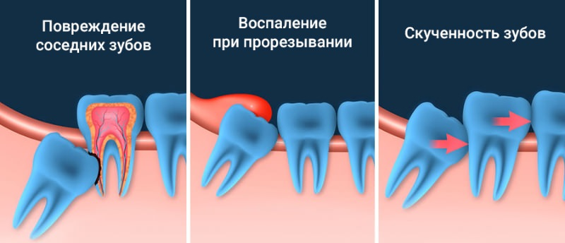 Сколько стоит удаление зуба мудрости